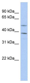 Western blot - FAM46A antibody (ab90263)