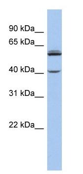 Western blot - CYP4V2 antibody (ab90271)