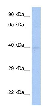 Western blot - SDF4 antibody (ab90288)
