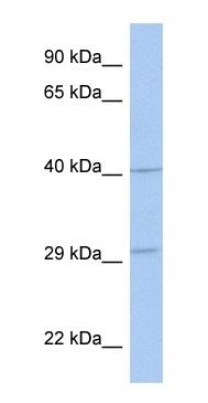Western blot - ART5 antibody (ab90290)