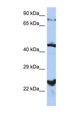 Western blot - MRS2 antibody (ab90295)