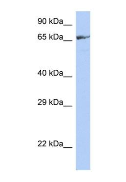 Western blot - ZNF676 antibody (ab90297)