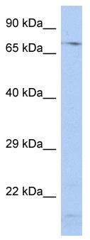 Western blot - SRP72 antibody (ab90302)