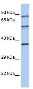 Western blot - Rabphilin 3A antibody (ab90306)
