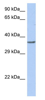 Western blot - DP1 antibody (ab90309)