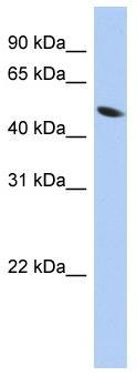 Western blot - ZNF793 antibody (ab90326)
