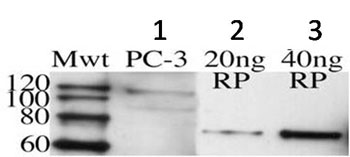 Western blot - Huntingtin Interacting Protein HIP1 antibody [1B11] (ab90341)
