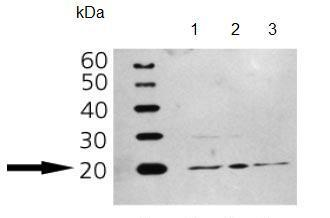 Western blot - ARF1 antibody [ARFS 3F1] (ab90356)