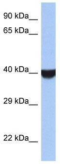 Western blot - TMED8 antibody (ab90361)