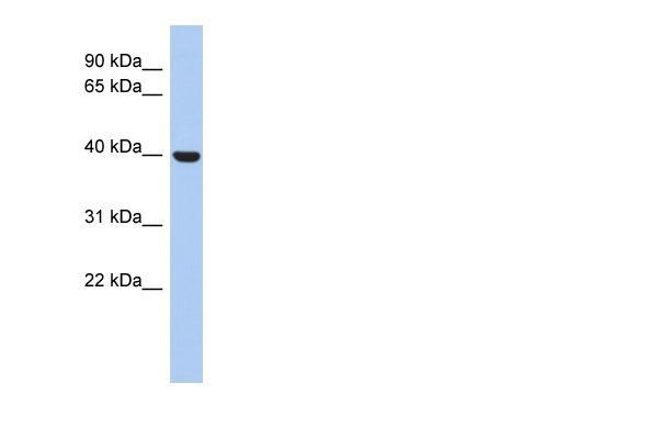 Western blot - STOML3 antibody (ab90368)