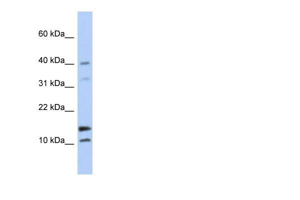 Western blot - WFDC5 antibody (ab90369)