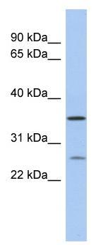 Western blot - SDR-O antibody (ab90371)