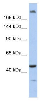 Western blot - KIAA0284 antibody (ab90413)