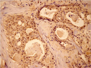 Immunohistochemistry (Formalin/PFA-fixed paraffin-embedded sections) - MEK1 antibody (ab90432)