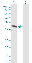 Western blot - M6PRBP1 antibody (ab90439)