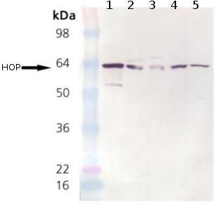 Western blot - STIP1 antibody [DS14F5] (ab90460)