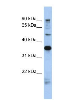 Western blot - PRR19  antibody (ab90469)
