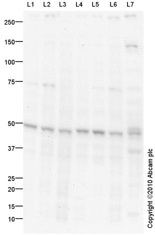 Western blot - NSE antibody (ab90473)