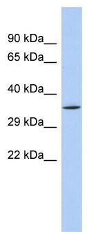 Western blot - SIRT4 antibody (ab90485)