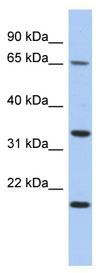 Western blot - TPRG1 antibody (ab90496)