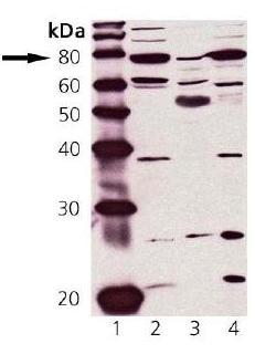 Western blot - cGKI antibody (ab90502)