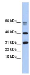 Western blot -  NPIP-like protein 1 antibody (ab90509)