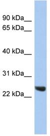 Western blot - Proteasome subunit beta type 2 antibody (ab90510)