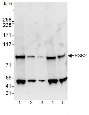 Western blot - Rsk 2 / MAPKAP Kinase 1b antibody (ab90526)