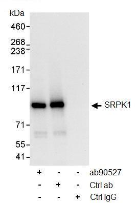 Immunoprecipitation - SRPK1 antibody (ab90527)