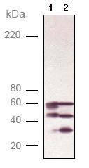 Western blot - Calcineurin A antibody (ab90540)