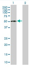 Western blot - Factor I antibody (ab90546)