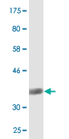Western blot - SIAH1 antibody (ab90556)