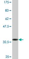 Western blot - EEA1 antibody (ab90557)
