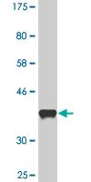 Western blot - GOT2 antibody (ab90562)