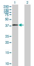 Western blot - ICAD  antibody (ab90563)