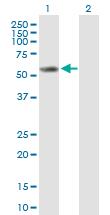 Western blot - Cytochrome P450 2E1 antibody (ab90564)
