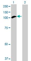 Western blot - Hexokinase Type III  antibody (ab90570)