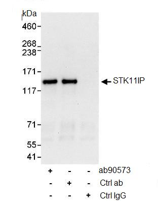 Immunoprecipitation - STK11IP antibody (ab90573)