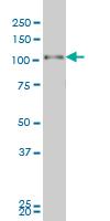 Western blot - Progesterone Receptor antibody (ab90577)