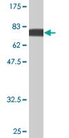Western blot - PI 3 Kinase p85 alpha antibody (ab90578)