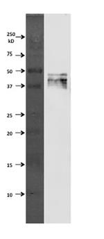 Western blot - GFAP antibody (ab90601)