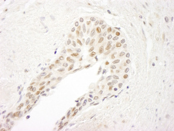 Immunohistochemistry (Formalin/PFA-fixed paraffin-embedded sections) - ATRIP antibody (ab90614)