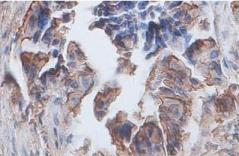 Immunohistochemistry (Formalin/PFA-fixed paraffin-embedded sections) - Annexin II antibody (ab90643)
