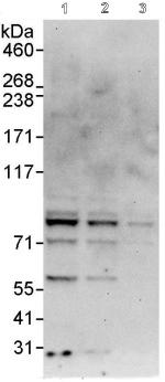 Western blot - Cullin 2 antibody (ab90653)