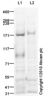Western blot - IGF1 Receptor antibody (ab90657)