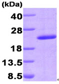 SDS-PAGE - PPIG protein (His tag) (ab90688)