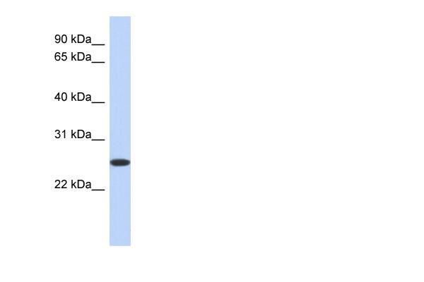 Western blot - BLVRB antibody (ab90694)