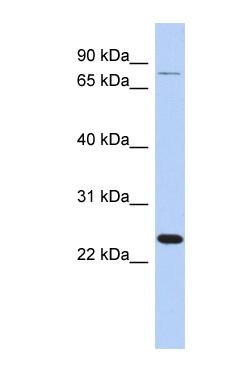 Western blot - RPS7 antibody (ab90697)