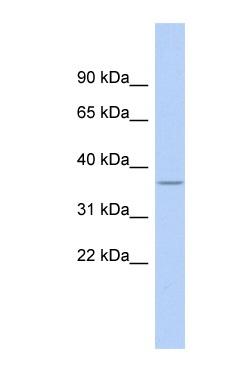 Western blot - RPL5 antibody (ab90698)