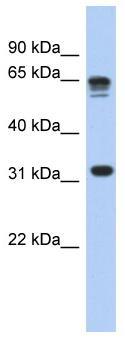 Western blot - RPS3A antibody (ab90701)
